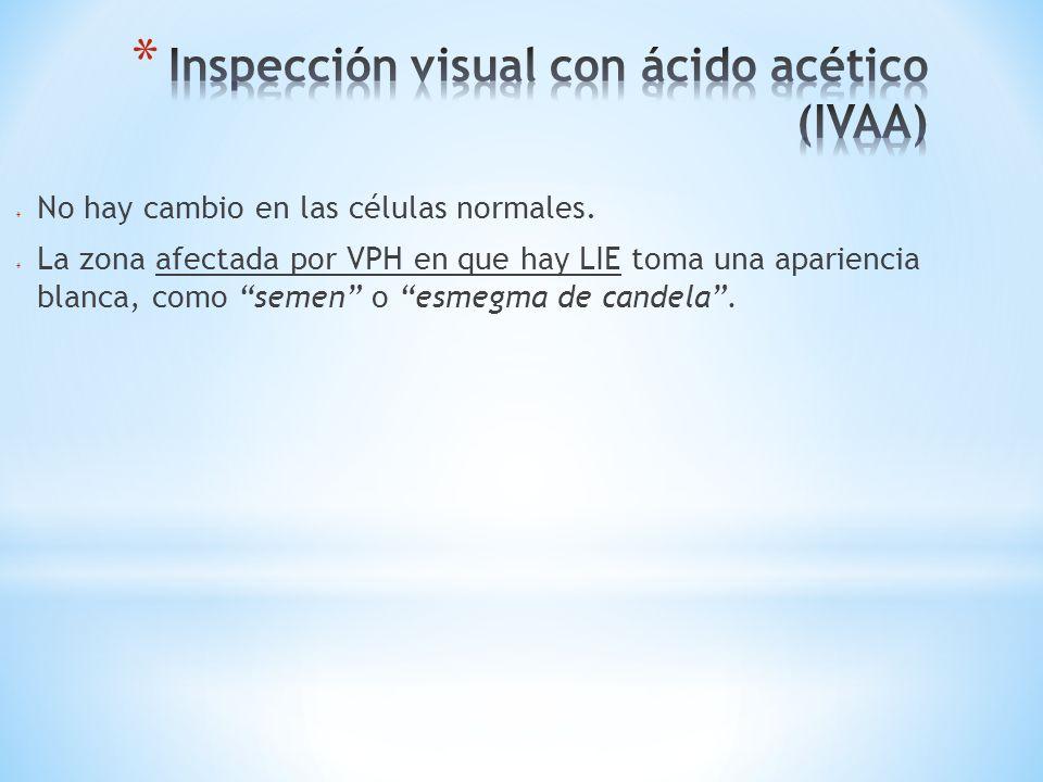 Inspección visual con ácido acético (IVAA)