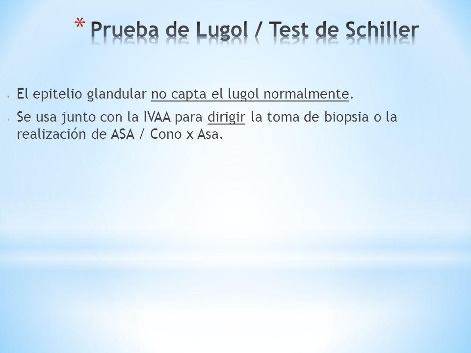 Prueba de Lugol / Test de Schiller