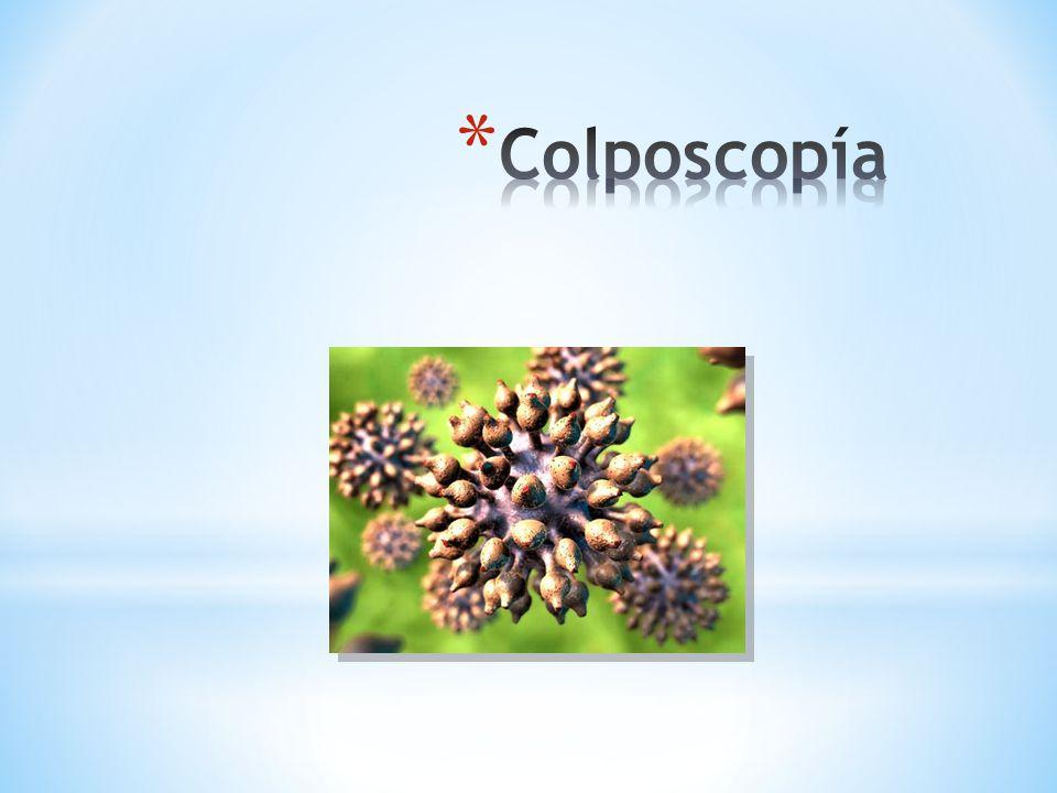 Colposcopía 38