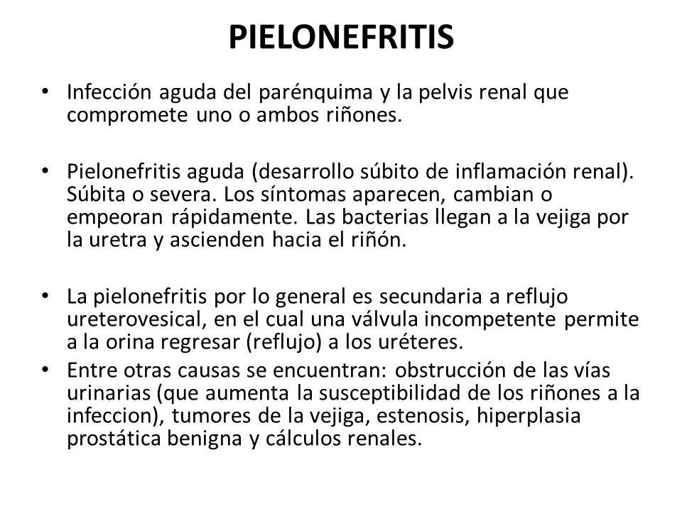 PIELONEFRITIS Infección aguda del parénquima y la pelvis renal que compromete uno o ambos riñones.