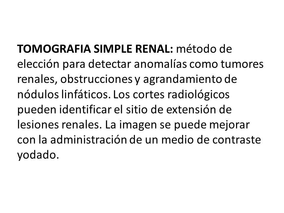 TOMOGRAFIA SIMPLE RENAL: método de elección para detectar anomalías como tumores renales, obstrucciones y agrandamiento de nódulos linfáticos.