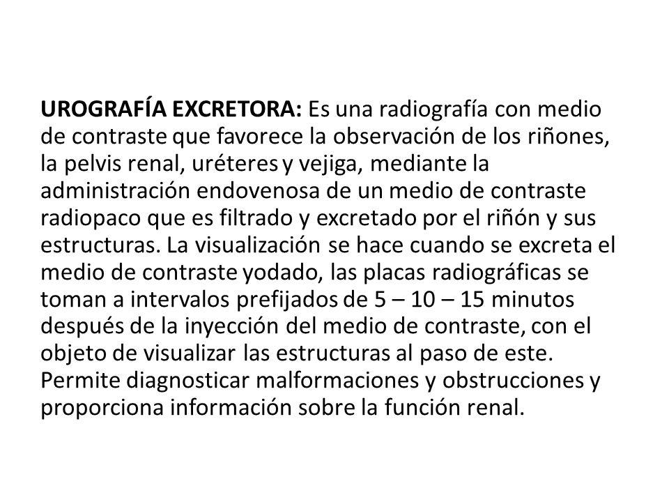 UROGRAFÍA EXCRETORA: Es una radiografía con medio de contraste que favorece la observación de los riñones, la pelvis renal, uréteres y vejiga, mediante la administración endovenosa de un medio de contraste radiopaco que es filtrado y excretado por el riñón y sus estructuras.