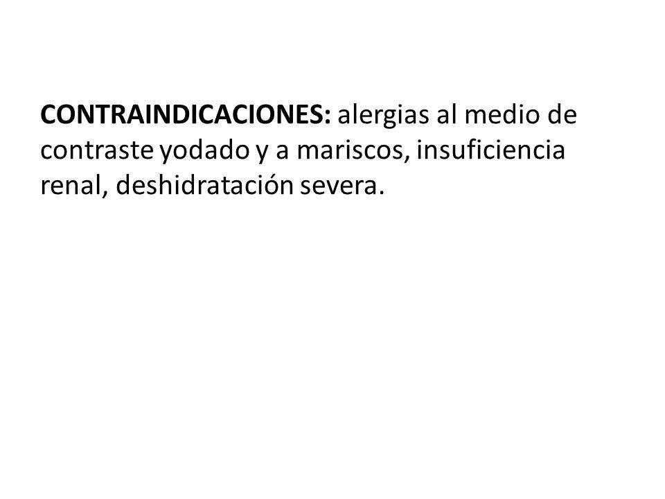 CONTRAINDICACIONES: alergias al medio de contraste yodado y a mariscos, insuficiencia renal, deshidratación severa.