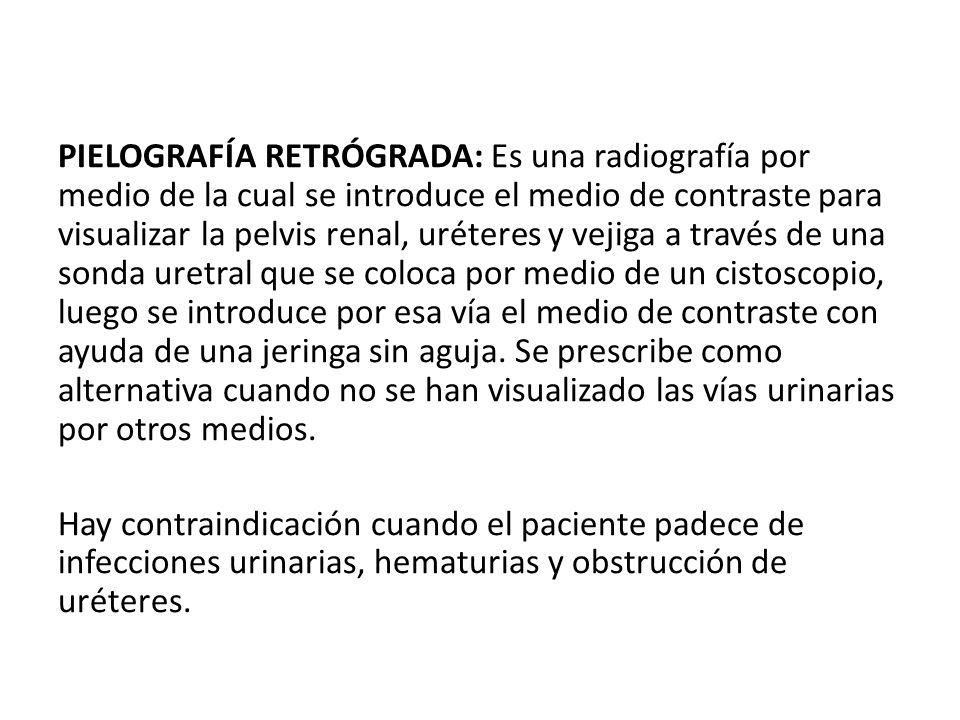 PIELOGRAFÍA RETRÓGRADA: Es una radiografía por medio de la cual se introduce el medio de contraste para visualizar la pelvis renal, uréteres y vejiga a través de una sonda uretral que se coloca por medio de un cistoscopio, luego se introduce por esa vía el medio de contraste con ayuda de una jeringa sin aguja.