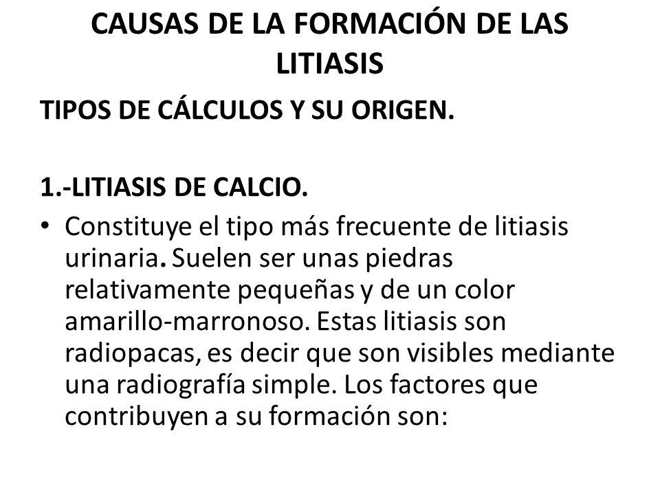 CAUSAS DE LA FORMACIÓN DE LAS LITIASIS