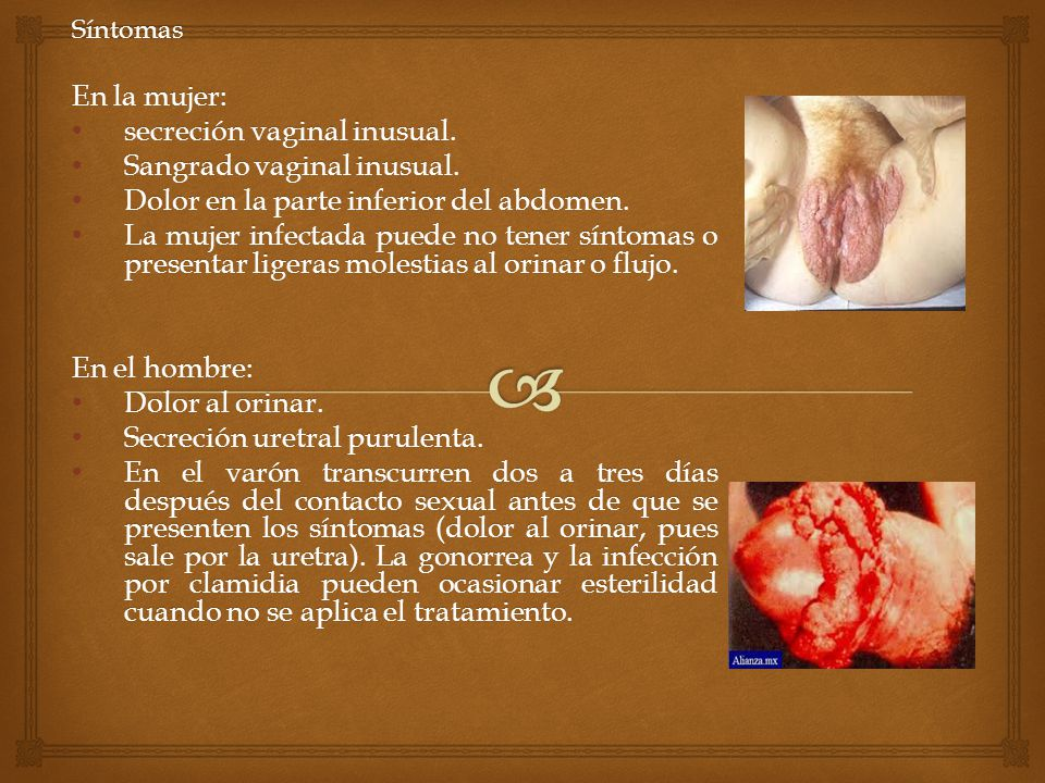secreción vaginal inusual. Sangrado vaginal inusual.