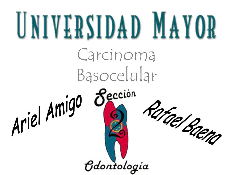 Carcinoma Basocelular
