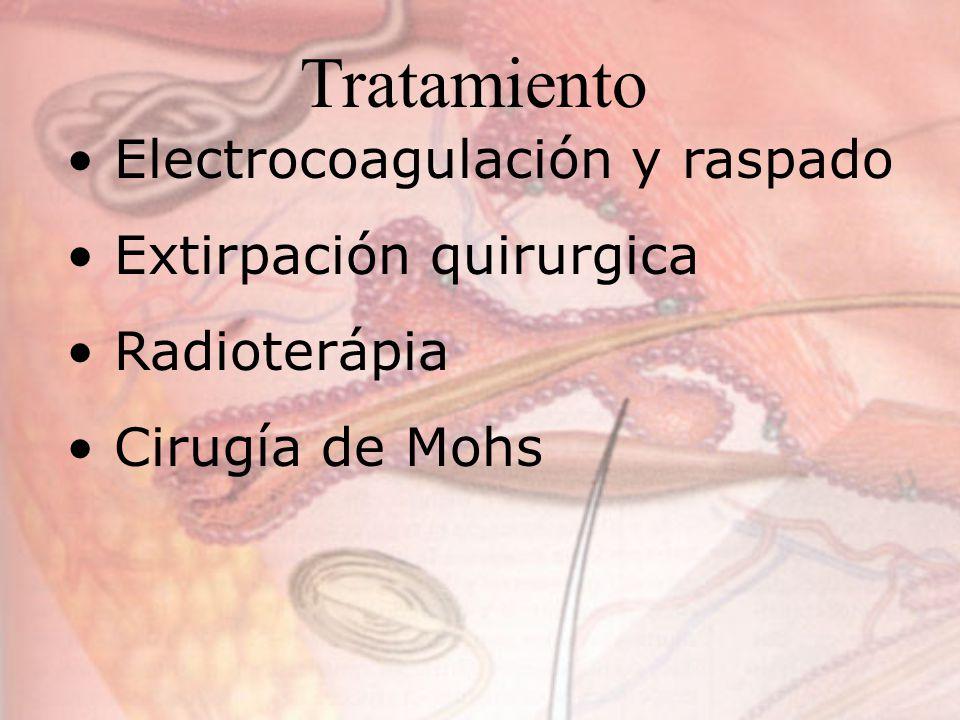 Tratamiento Electrocoagulación y raspado Extirpación quirurgica