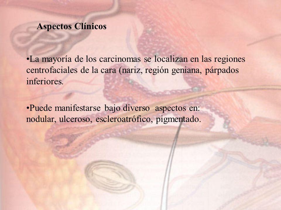 Aspectos Clínicos La mayoría de los carcinomas se localizan en las regiones centrofaciales de la cara (nariz, región geniana, párpados inferiores.