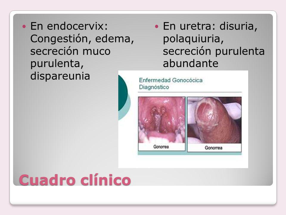 En endocervix: Congestión, edema, secreción muco purulenta, dispareunia