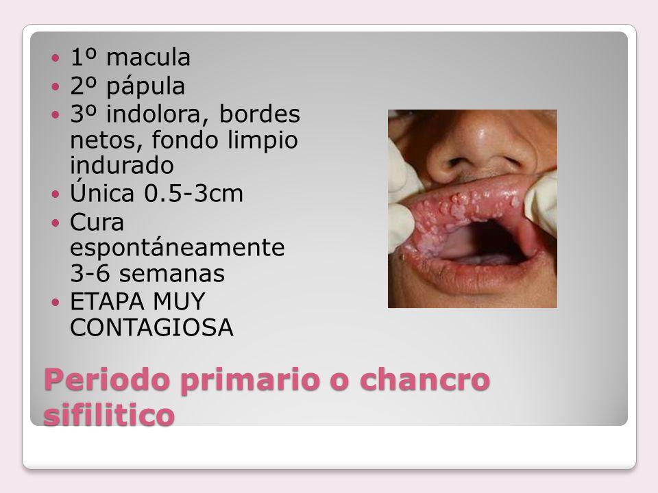 Periodo primario o chancro sifilitico