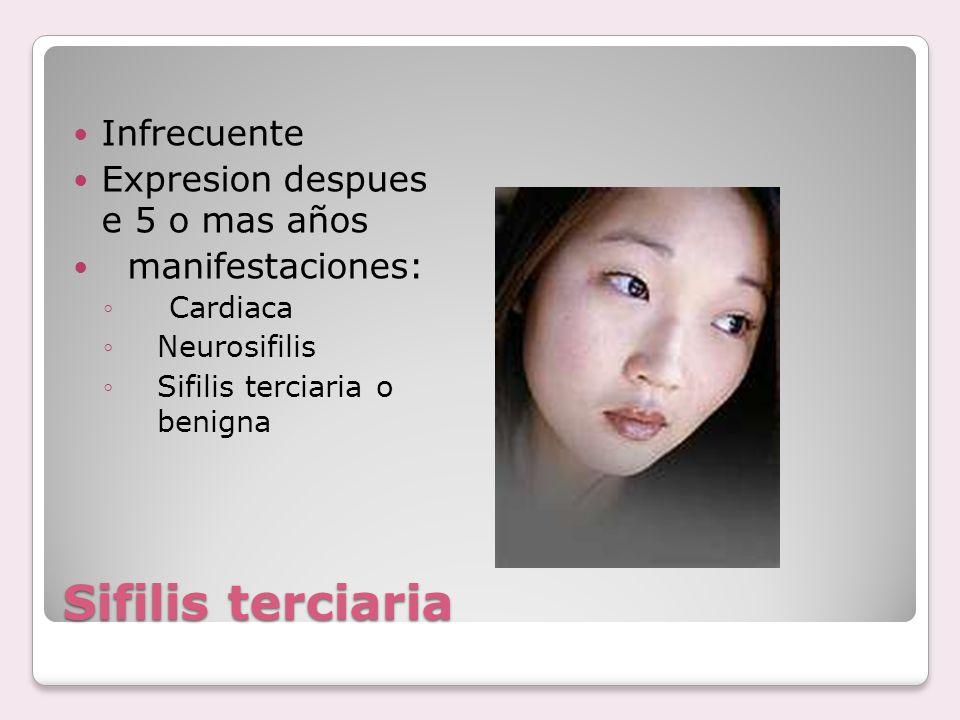 Sifilis terciaria Infrecuente Expresion despues e 5 o mas años