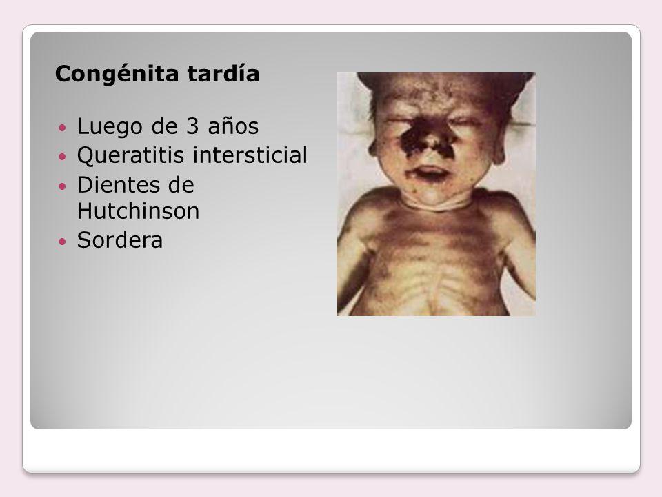 Congénita tardía Luego de 3 años Queratitis intersticial Dientes de Hutchinson Sordera