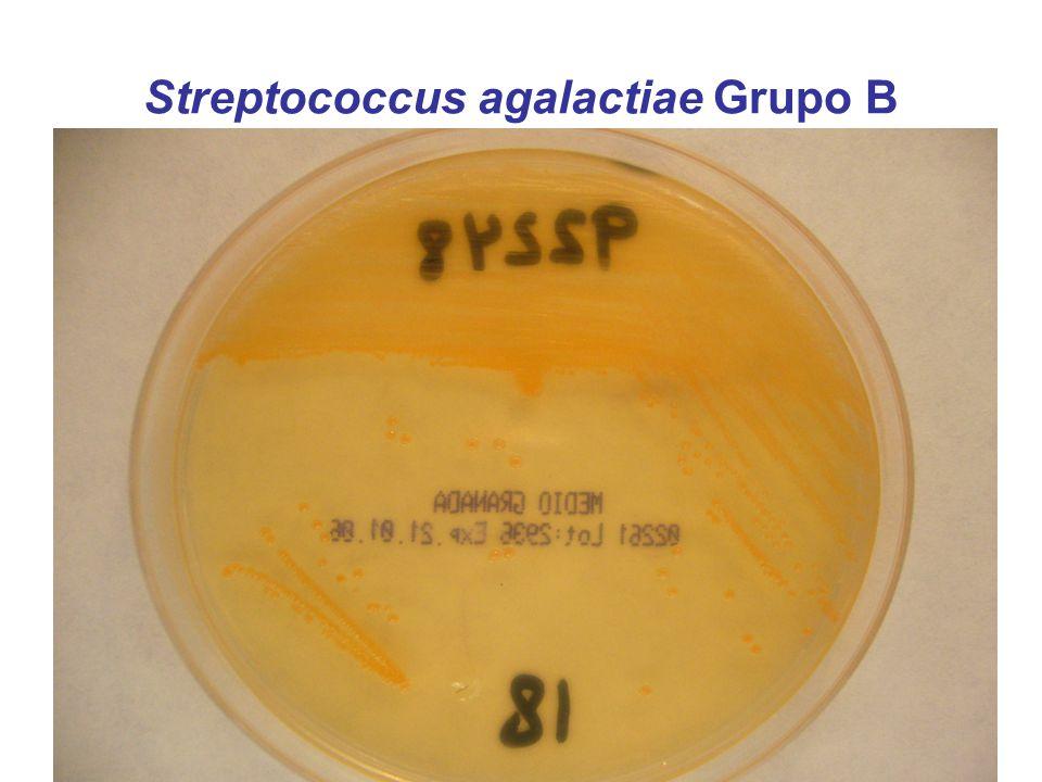 Streptococcus agalactiae Grupo B