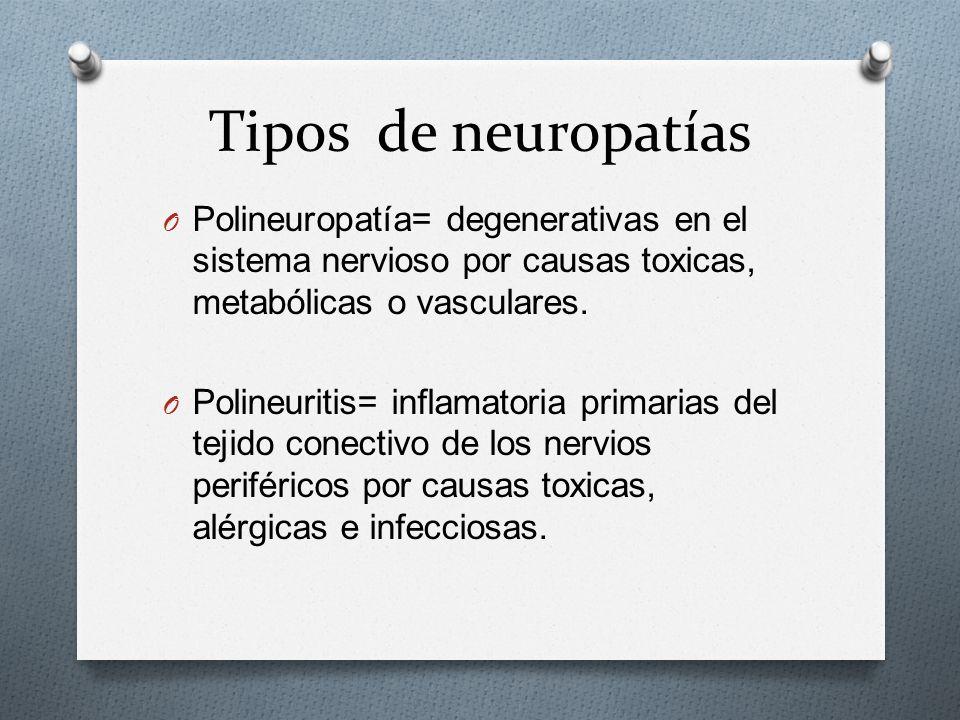 Tipos de neuropatías Polineuropatía= degenerativas en el sistema nervioso por causas toxicas, metabólicas o vasculares.