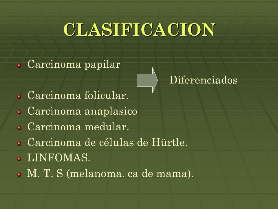 CLASIFICACION Carcinoma papilar Diferenciados Carcinoma folicular.