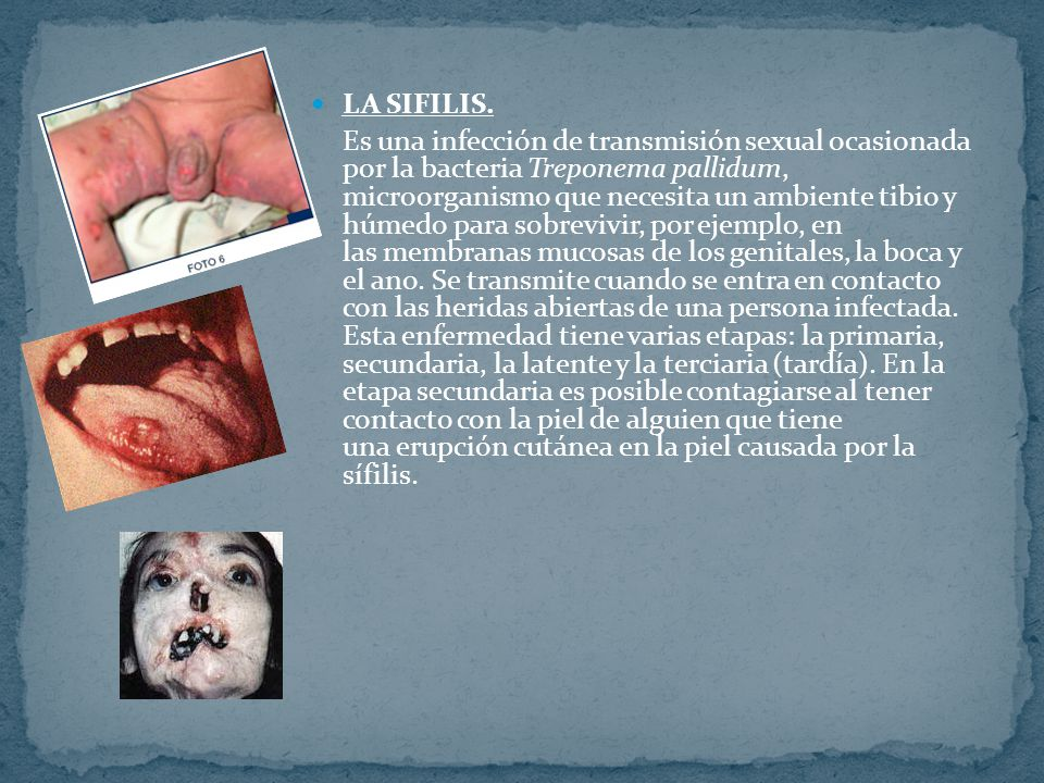 LA SIFILIS.