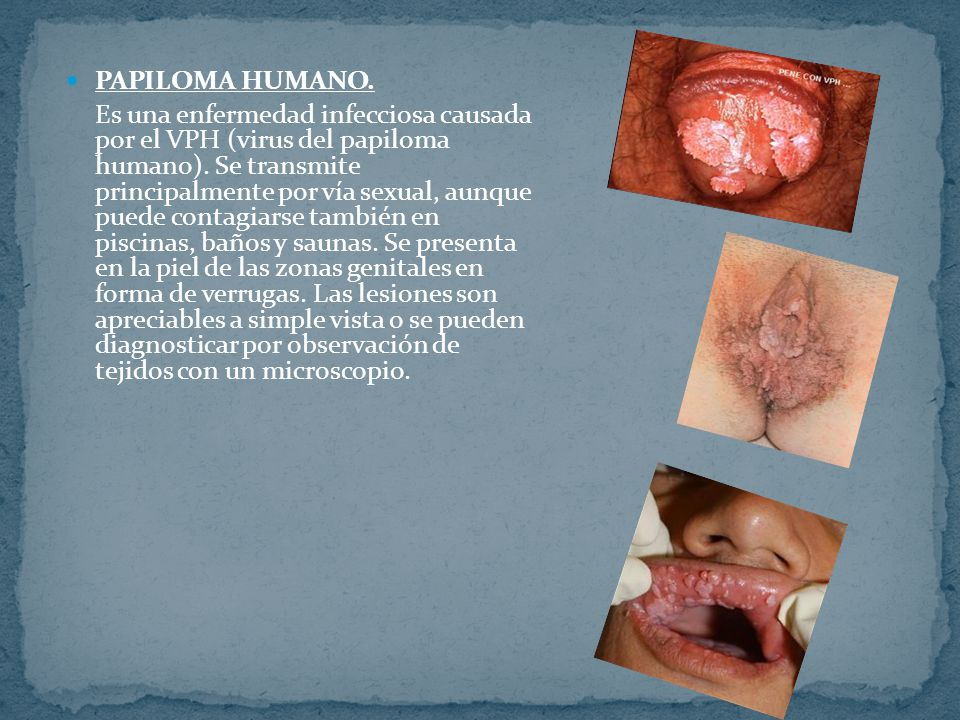 PAPILOMA HUMANO.