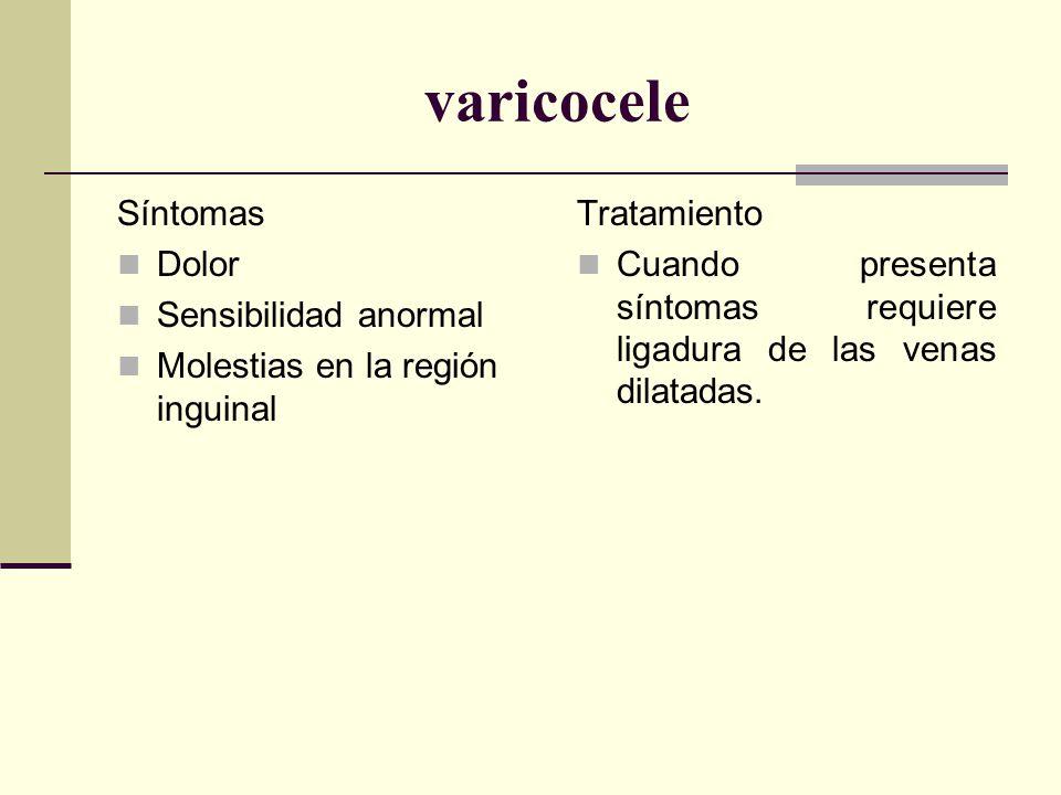 varicocele Síntomas Dolor Sensibilidad anormal