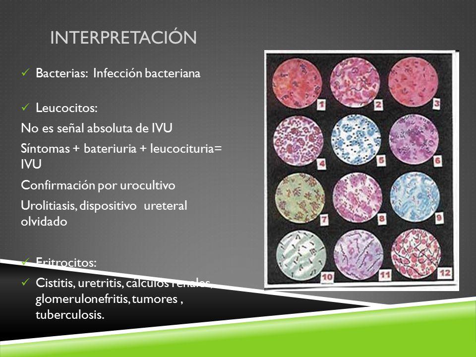 INTERPRETACIÓN Bacterias: Infección bacteriana Leucocitos: