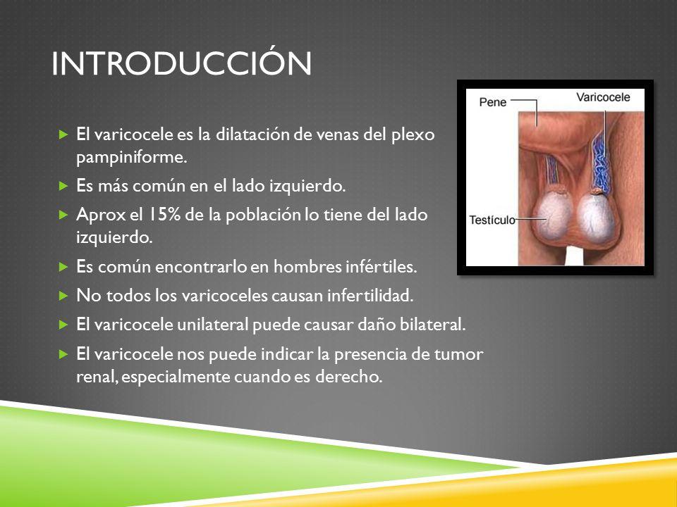 introducción El varicocele es la dilatación de venas del plexo pampiniforme. Es más común en el lado izquierdo.