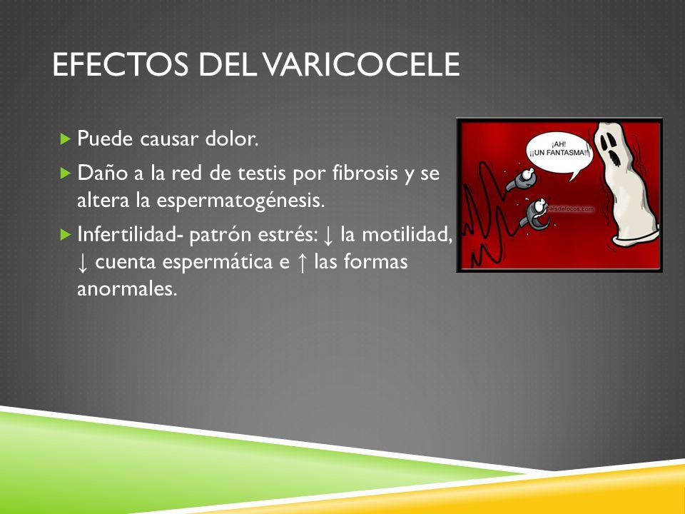 Efectos del varicocele