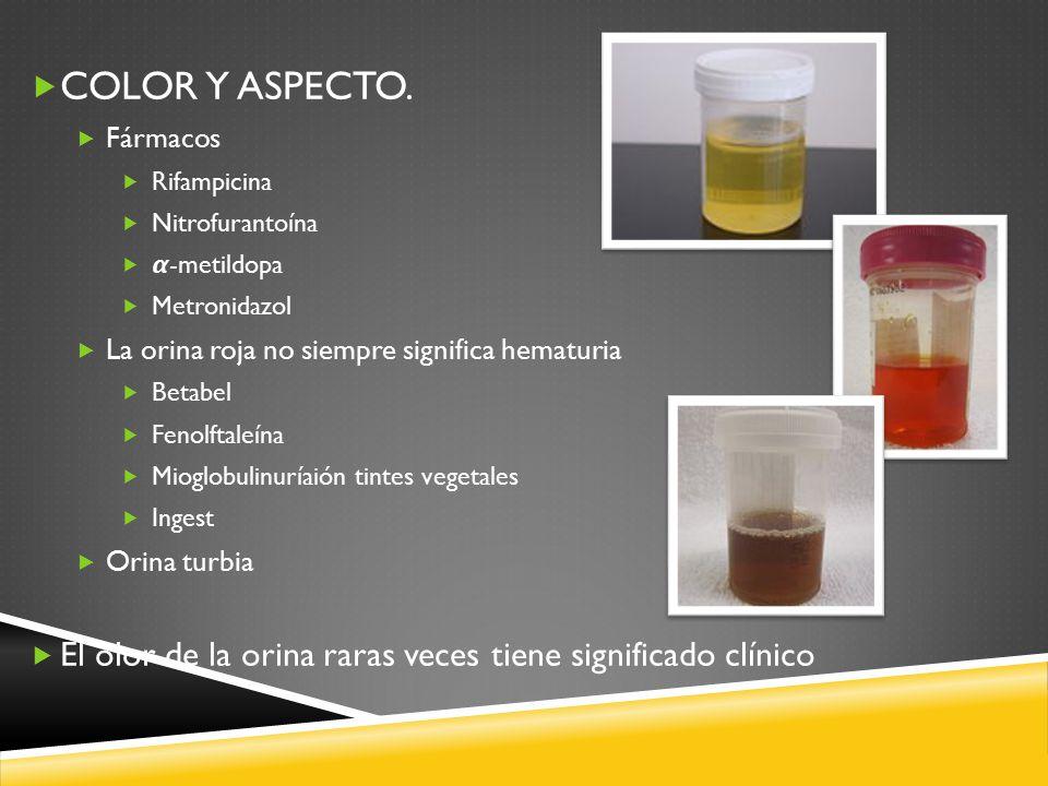 COLOR Y ASPECTO. Fármacos. Rifampicina. Nitrofurantoína. 𝞪-metildopa. Metronidazol. La orina roja no siempre significa hematuria.