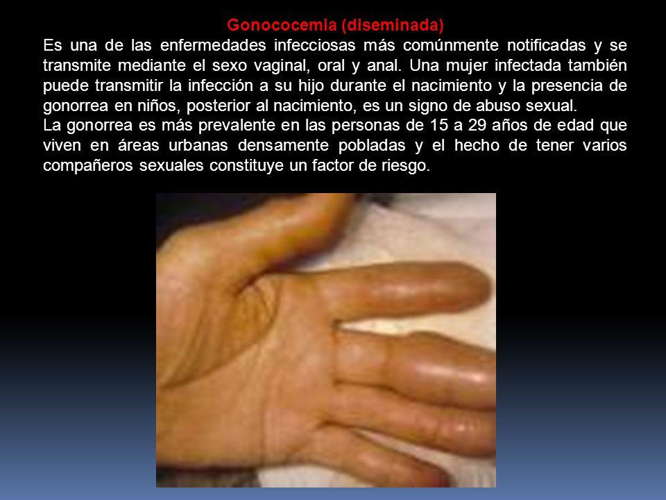 Gonococemia (diseminada)