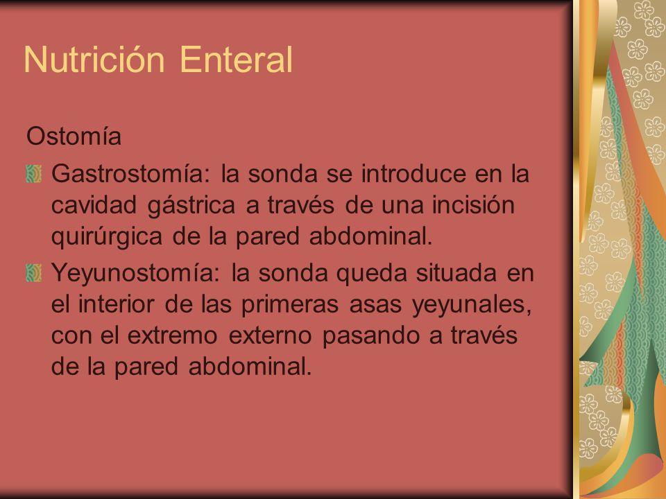 Nutrición Enteral Ostomía