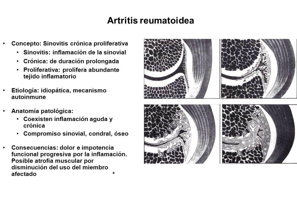 Increíble Anatomía Y La Fisiología De La Artritis Reumatoide ...