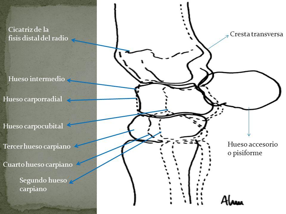 Único Hueso Radio Imagen - Imágenes de Anatomía Humana ...