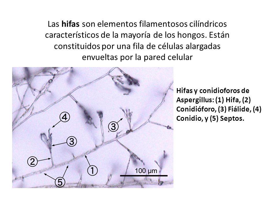 Reino fungi ppt video online descargar - Tipos de hongos en la pared ...