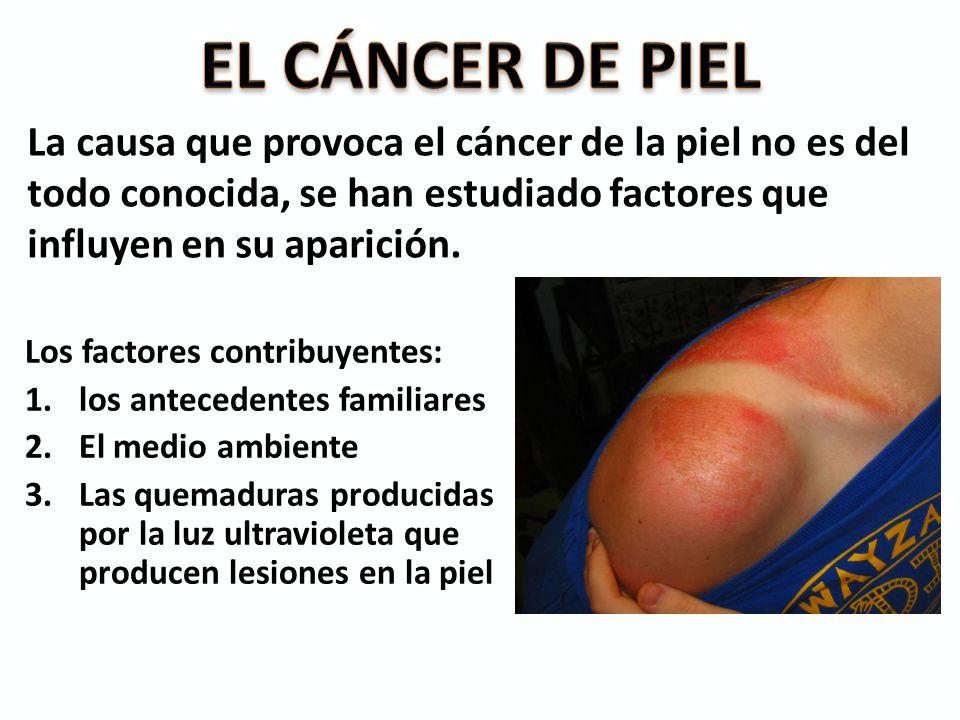 EL CÁNCER DE PIEL La causa que provoca el cáncer de la piel no es del todo conocida, se han estudiado factores que influyen en su aparición.