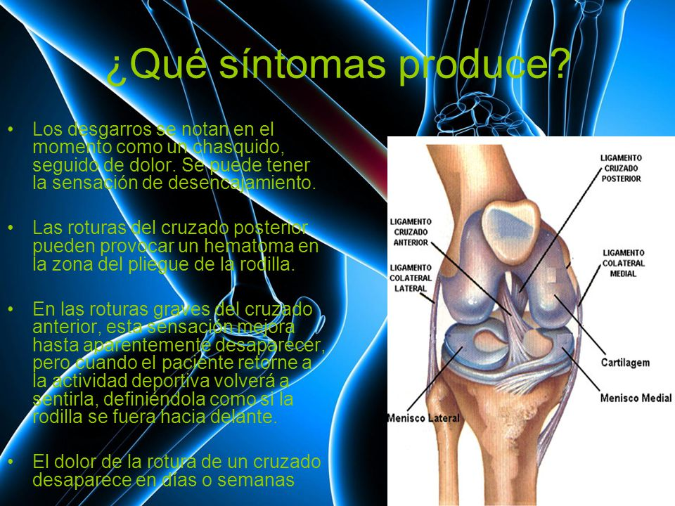 Excelente Colateral Lateral Anatomía Ligamento De La Rodilla Bandera ...