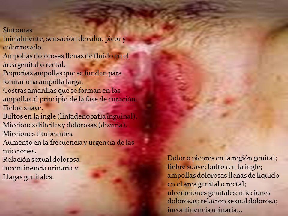 Síntomas Inicialmente, sensación de calor, picor y color rosado. Ampollas dolorosas llenas de fluido en el área genital o rectal.
