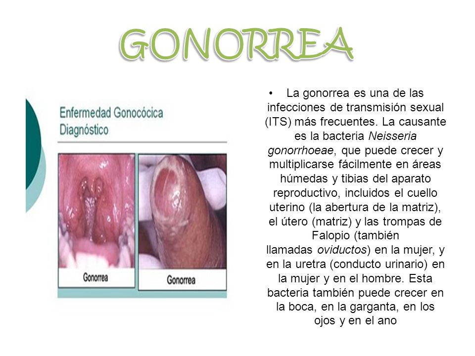 GONORREA .