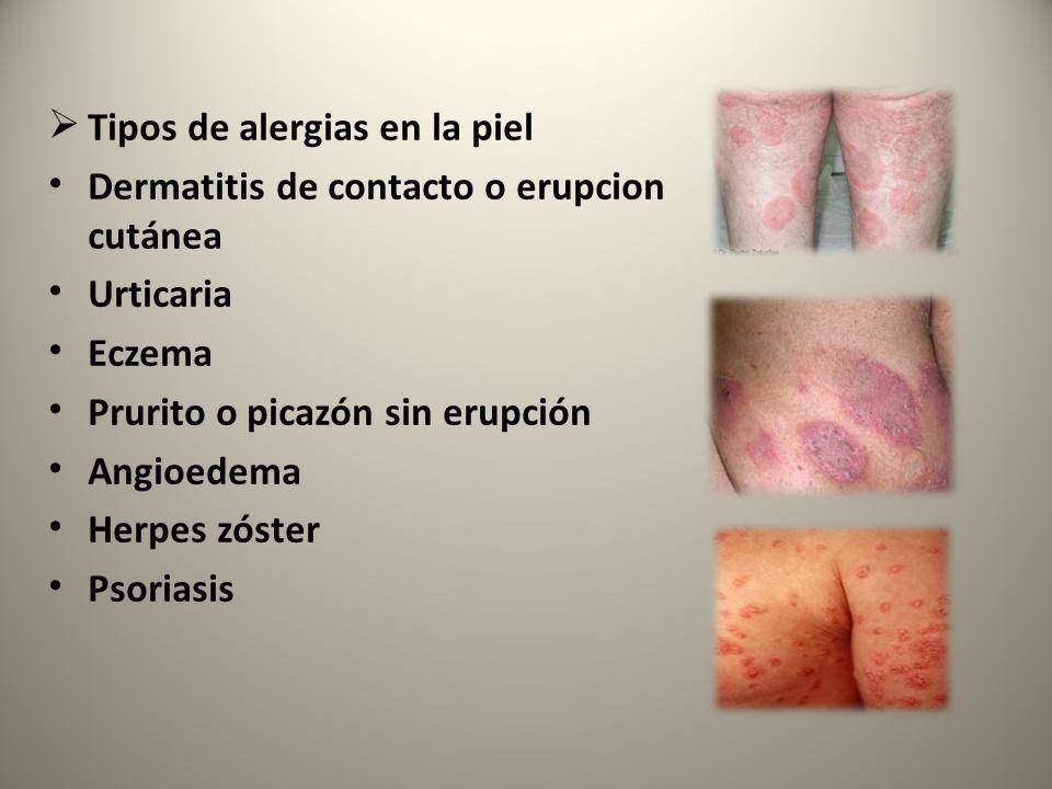 Tipos de alergias en la piel