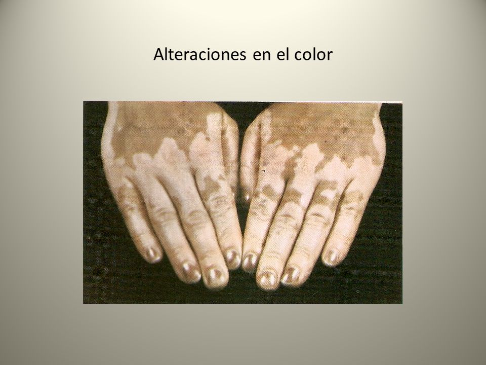 Alteraciones en el color
