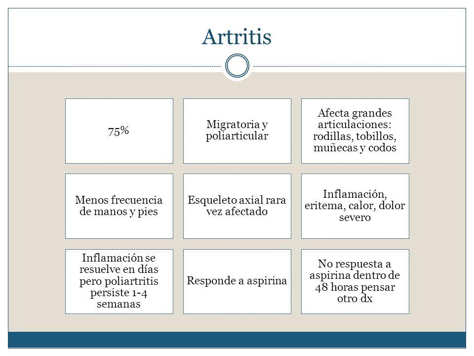 Artritis 75% Migratoria y poliarticular