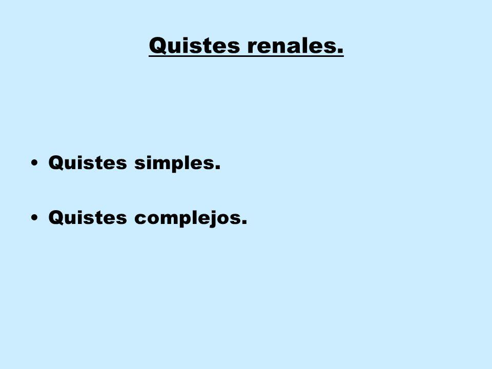 Quistes renales. Quistes simples. Quistes complejos.