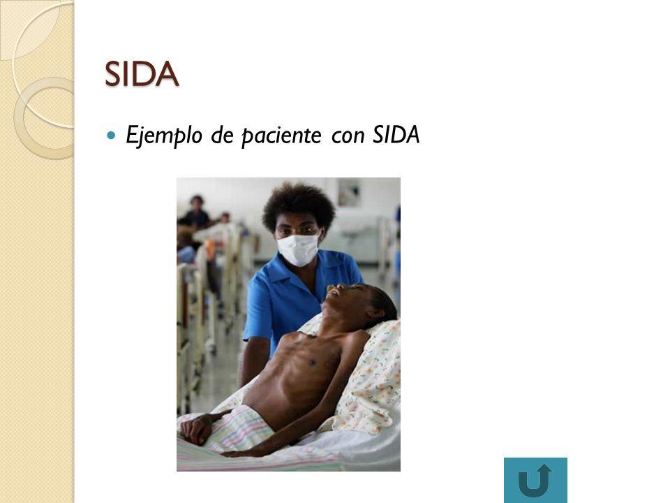 Ejemplo de paciente con SIDA