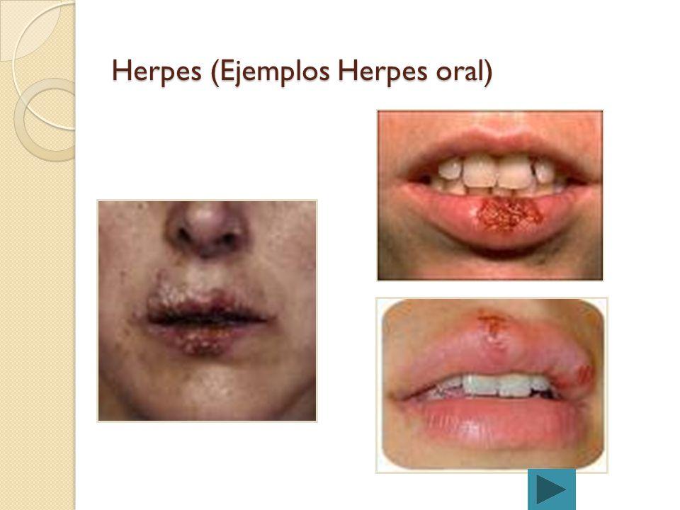 Herpes (Ejemplos Herpes oral)