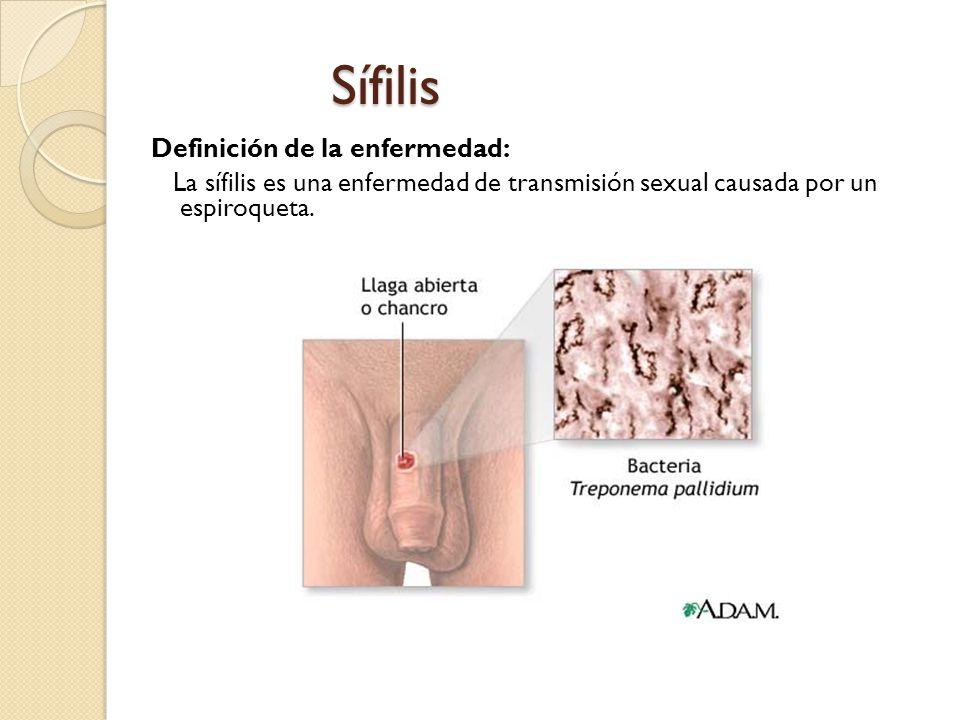 Sífilis Definición de la enfermedad: La sífilis es una enfermedad de transmisión sexual causada por un espiroqueta.