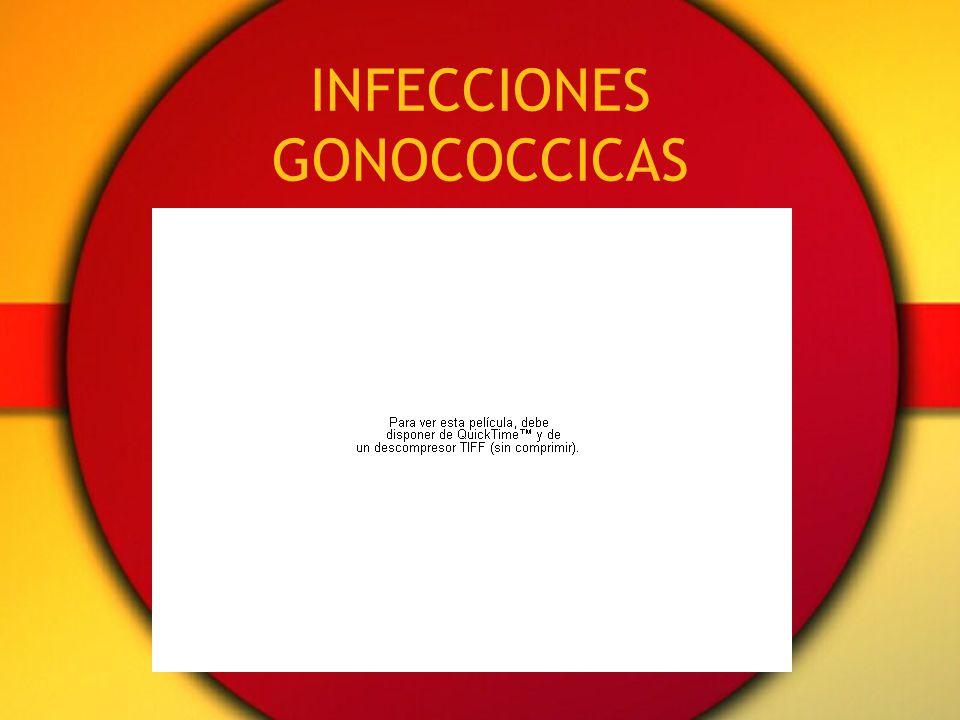 INFECCIONES GONOCOCCICAS
