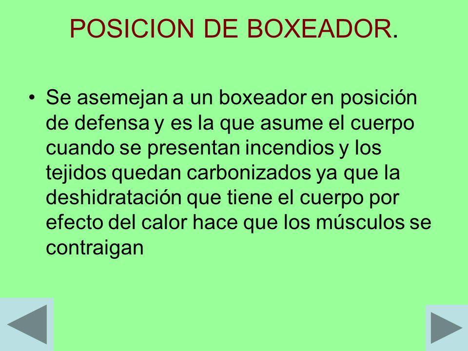 POSICION DE BOXEADOR.