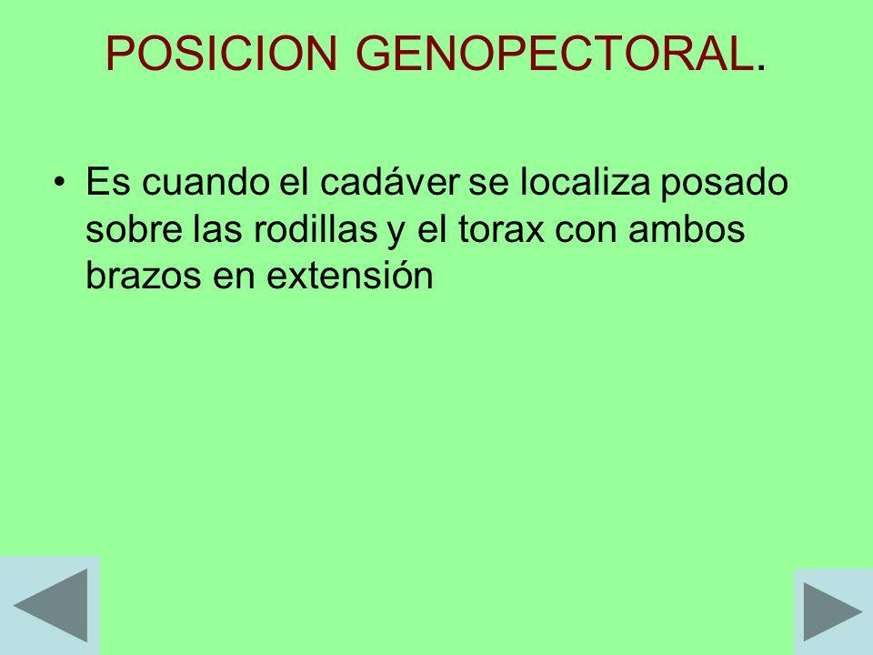 POSICION GENOPECTORAL.