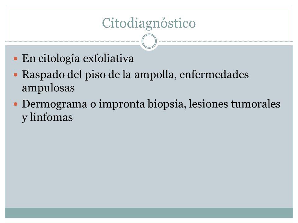 Citodiagnóstico En citología exfoliativa