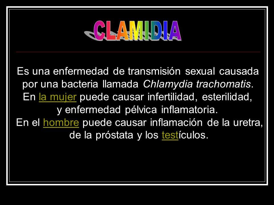 CLAMIDIA Es una enfermedad de transmisión sexual causada