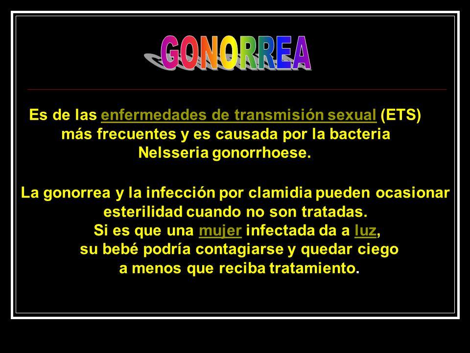 GONORREA Es de las enfermedades de transmisión sexual (ETS)