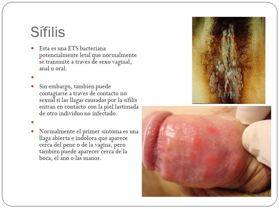 Sífilis Esta es una ETS bacteriana potencialmente letal que normalmente se transmite a través de sexo vaginal, anal u oral.